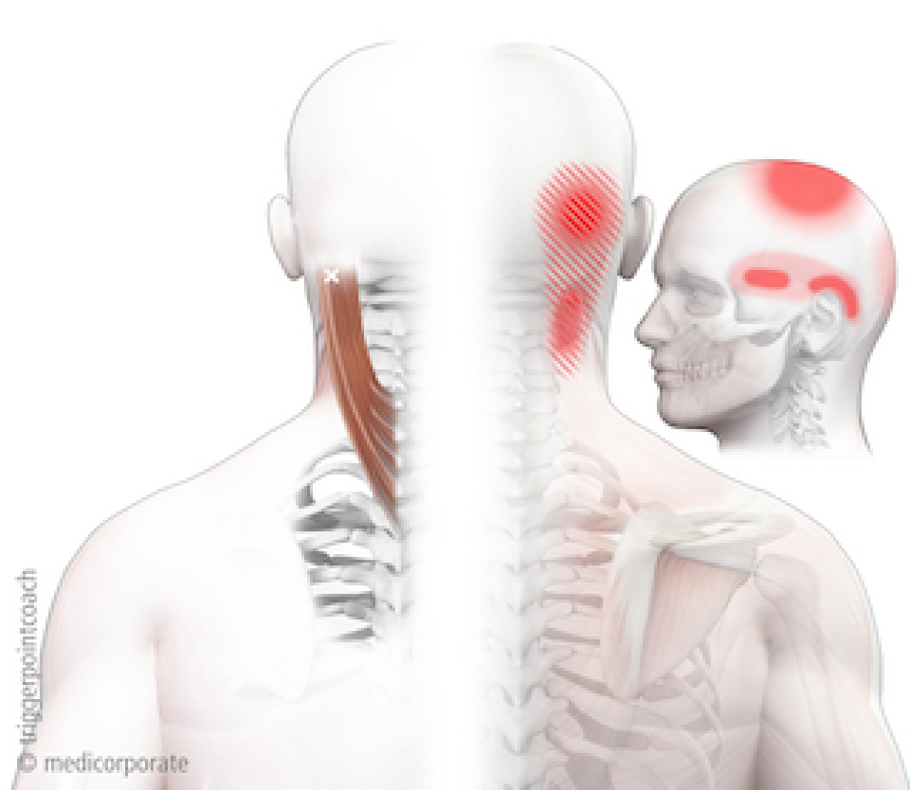 Hoofd- en nekpijn door triggerpoints | Opleiding Triggerpointcoach®
